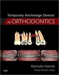 دانلود رایگان کتاب دستگاه انکوریج موقت در ارتودنسی Temporary Anchorage Devices in Orthodontics-1ED