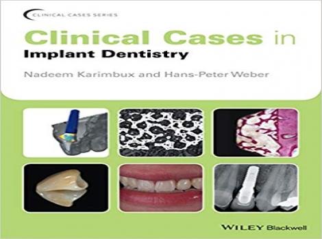 دانلود کتاب کیسهای بالینی در دندانپزشکی ایمپلنت 2017 Clinical Cases in Implant Dentistry 1 ED ویرایش اول 2017