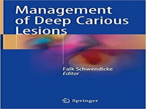دانلود کتاب مدیریت ضایعات کرم خوردگی عمقی Management of Deep Carious Lesions