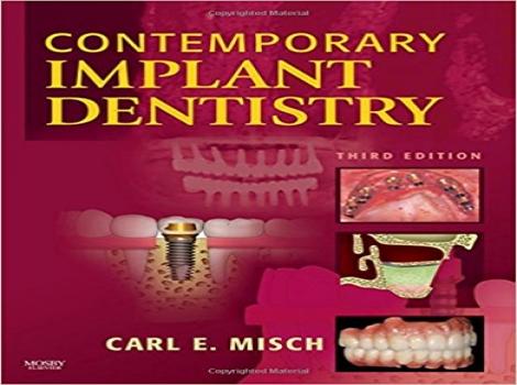 دانلود کتاب دندانپزشکی ایمپلنت معاصر- میش - Contemporary Implant Dentistry, 3 ED Misch