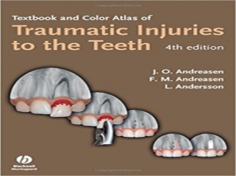 Textbook and Color Atlas of Traumatic Injuries to the Teeth 4