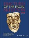 دانلود کتاب شکستگی های اسکلت صورت Fractures of the Facial Skeleton 2 ED