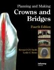 دانلود کتاب Planning and Making Crowns and Bridges 4 ED